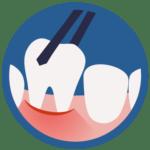 Dentista Milano Narcodont Prestazioni - Chirurgia orale