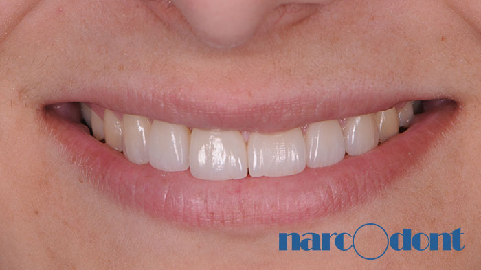 Dentista Milano Narcodont - Casi clinici